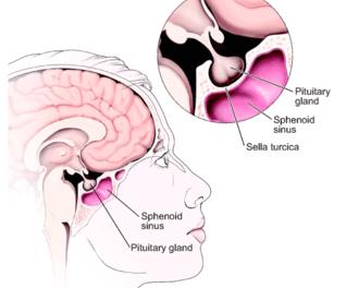 Pituitary Tumors Surgery