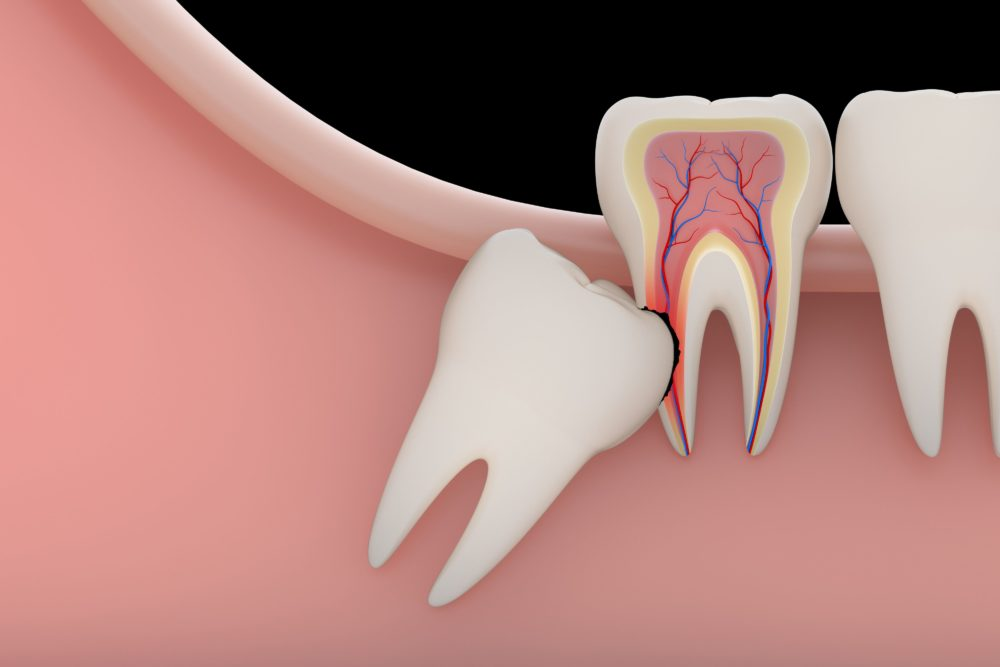 wisdom-teeth-removal-e1567720416161-1